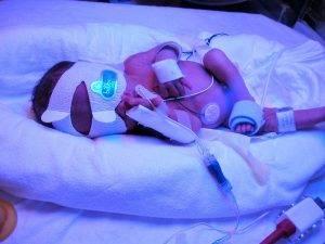 شش نکته در مورد زردی نوزادان