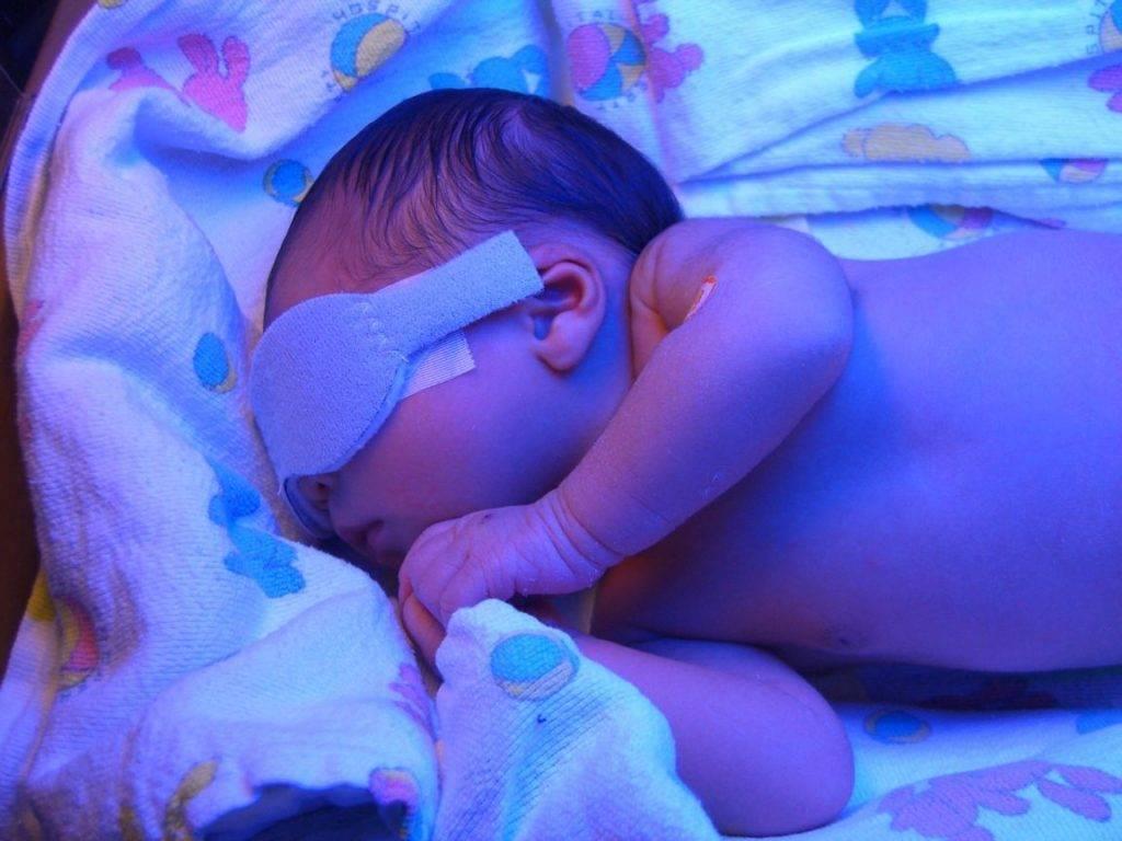 استفاده از چشم بند در هنگام فتوتراپی بسیار مهم است